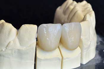 Brentwood Dental Crowns