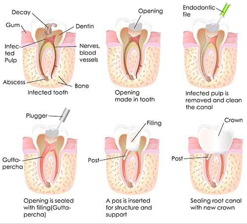 Root Canal Therapy in Brentwood